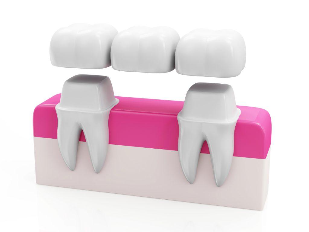 dental crowns fort lauderdale