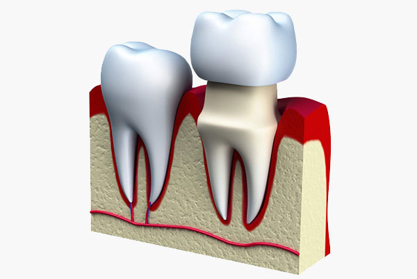 dental-services-crowns