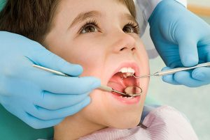 Pediatric Dentist Fort Lauderdale, FL - Tongue Ties and Frenectomy