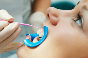 Preventative Pediatric Dentistry